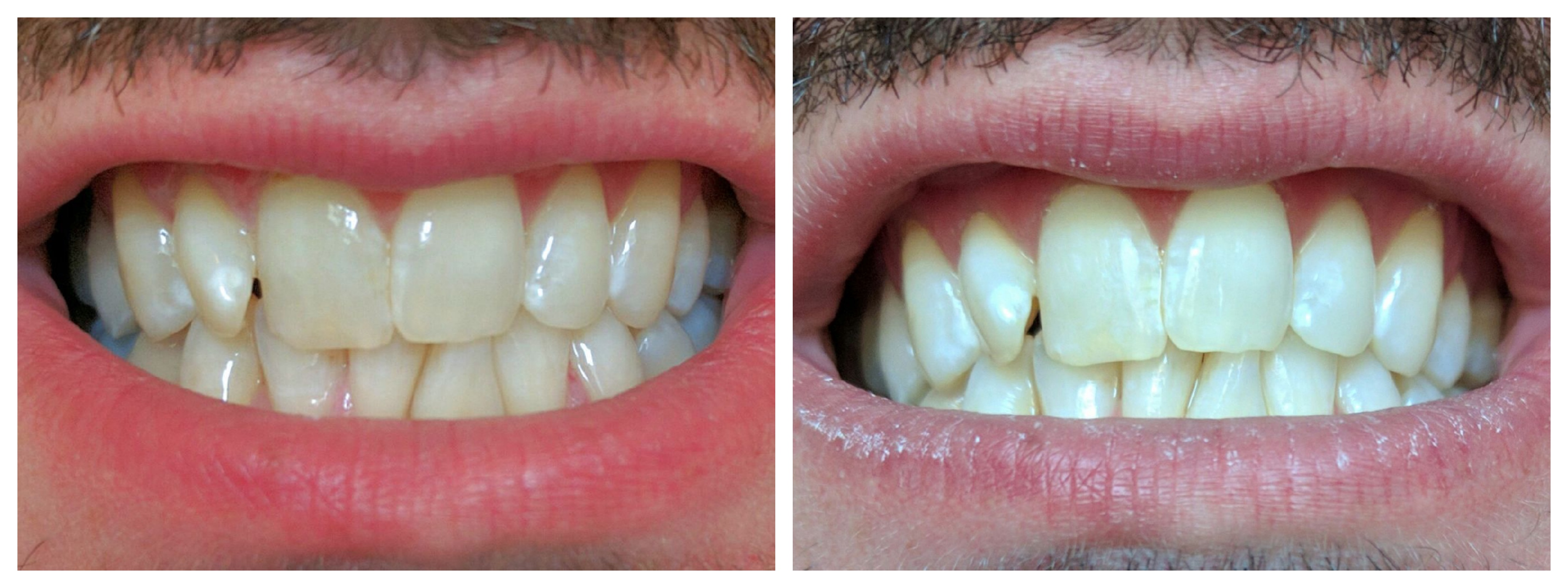 Boutique Teeth Whitening at White Swan Aesthetics, Wimbledon: Before and After