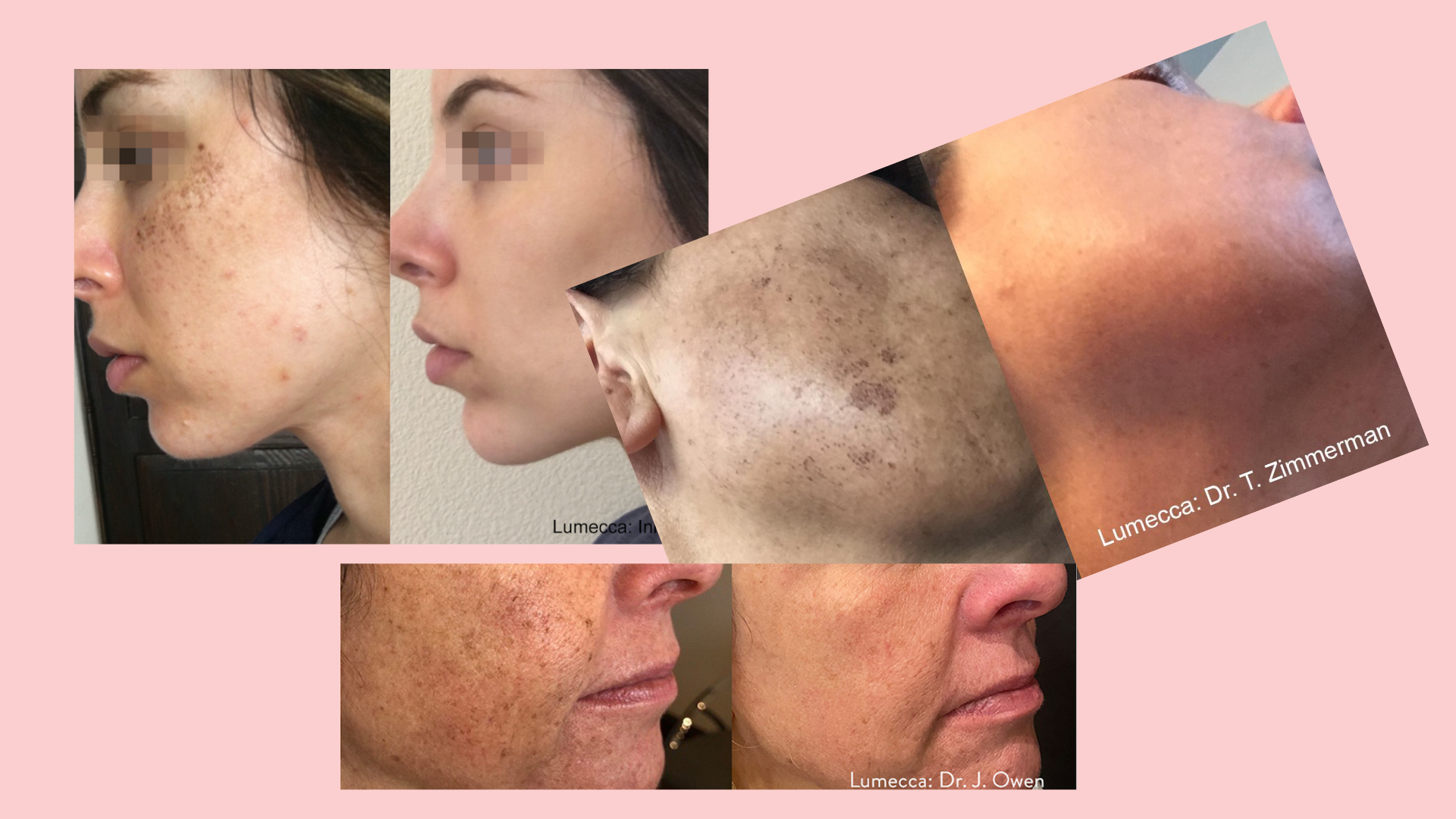 Luxe Bible Reviews Lumecca IPL at the Dr David Jack Clinic: Typical results after 3-6 treatments
